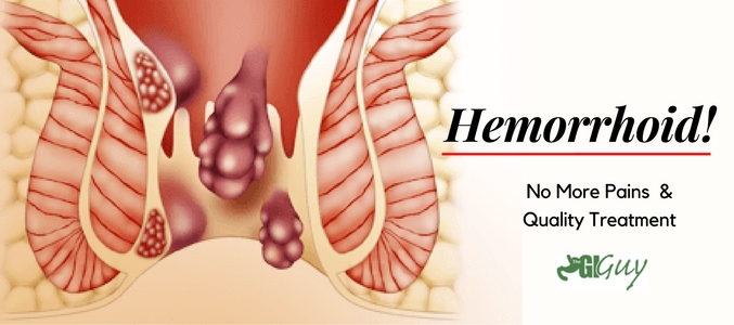 hemorrhoid treatment in wake forest